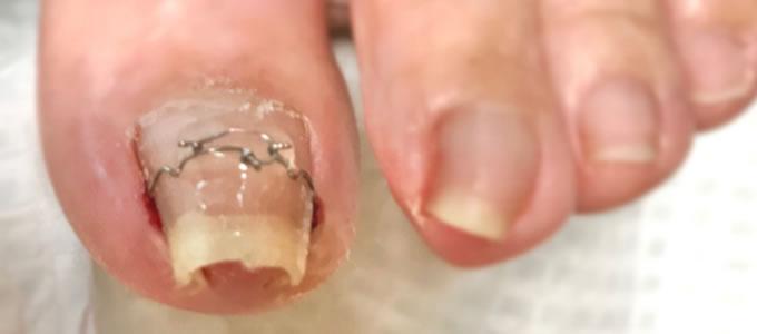 イメージ - 3TO(VHO)式巻き爪矯正法